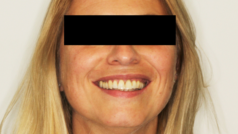 Matching of CBCT and virtual wax-up for single-tooth replacement of a central incisor