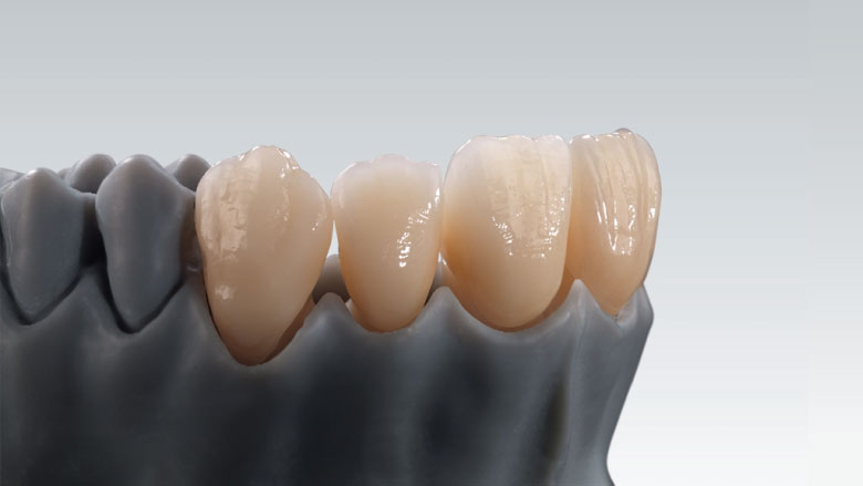 Zolid Gen-X – The new universal zirconium that changes everything